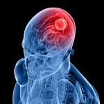 Positivons ! Stimuler certaines zones du cerveau permet de réduire la douleur à la manière de la prise d'opiacés…