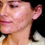 Gaillac : Atelier dermo-cosmétique au Centre Odelys