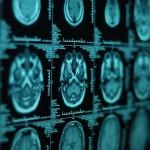 Imagerie cérébrale (c) z3zo - Fotolia